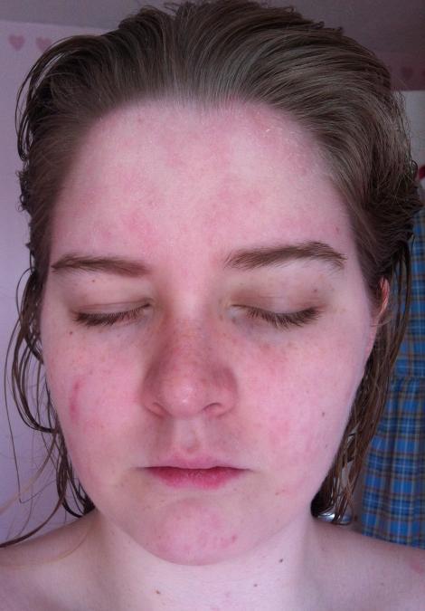 Eczema9